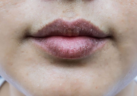 reasons for dark and chapped lips